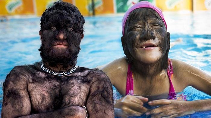 Голубокожие, рогатые, птиценогие: Люди, которые выглядят так, словно вышли из фэнтези-фильмов