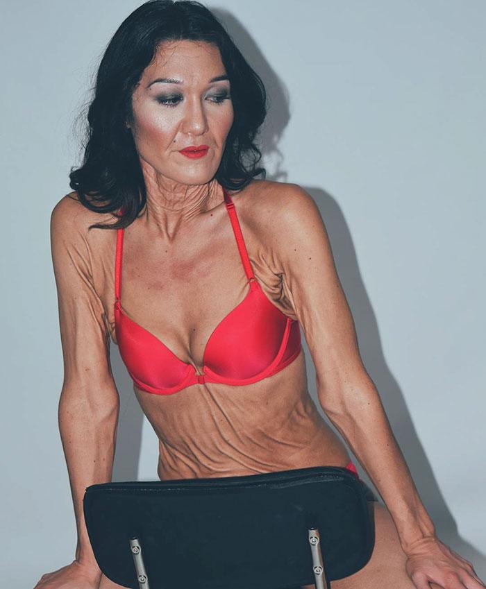 Сара Гертц &8211; модель с синдромом Элерса-Данлоса