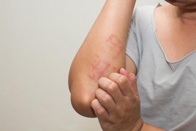 20 признаков, что в вашем организме есть глисты