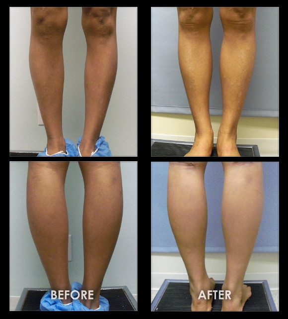 Как Мои Икры Похудели. 12 упражнений для похудения в области голени + диета и советы для стройных икр