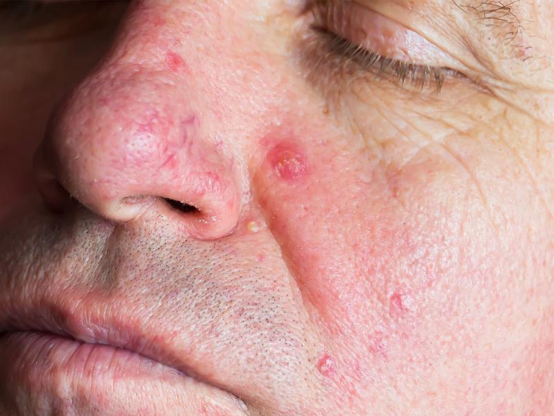 Знаете ли вы, что на лице взрослого человека живут крошечные клещи, и с каждым годом их становится все больше