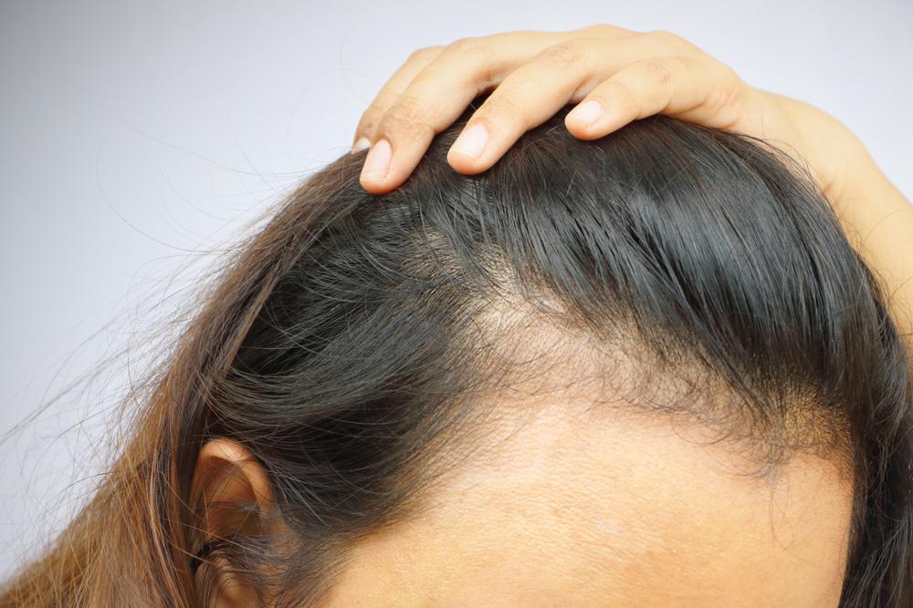 Почему лысеют женщины и как понять, что это действительно происходит? 7 признаков, которые мы часто игнорируем