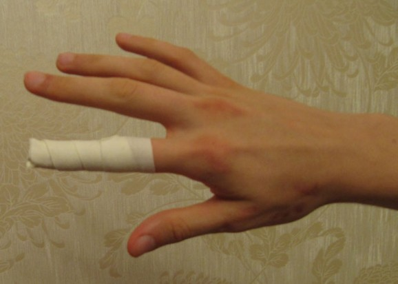 2 рецепта от нагноения в ногте. Хирурги режут, но можно вылечиться быстро и без боли