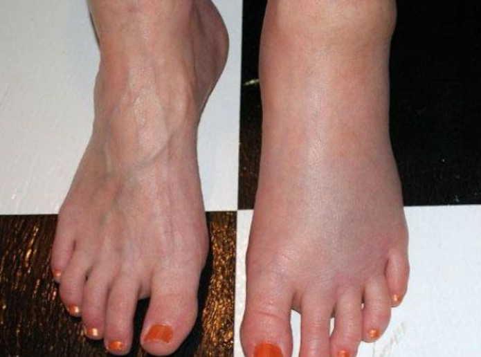 Семена льна от отеков ног: 8 простых рецептов снять отечность с ног. Простое лечение без таблеток