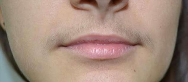 Нужно ли сбривать усы возрастным женщинам? Если «нет», то как с ними бороться