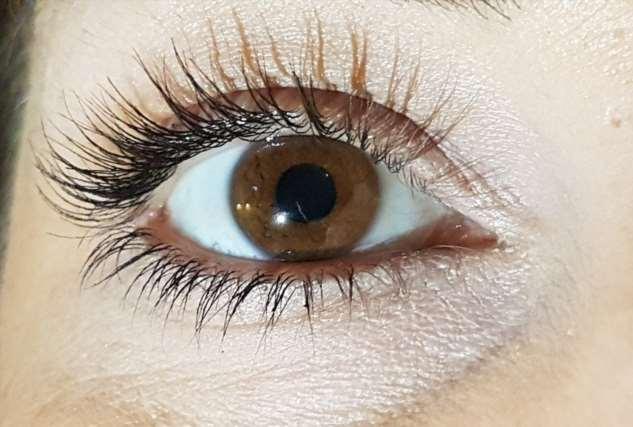Ученые рассказали, от чего чаще страдают люди с карими глазами
