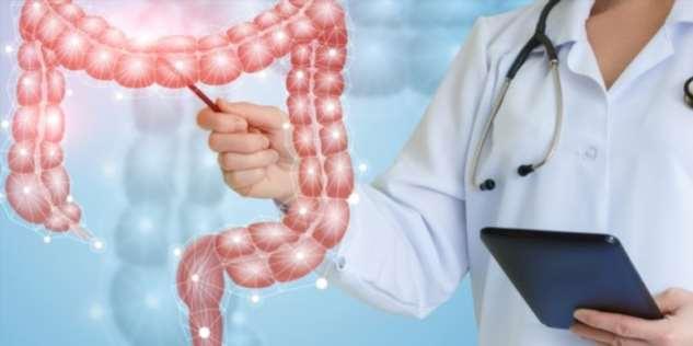 Рак толстой кишки — как не заболеть