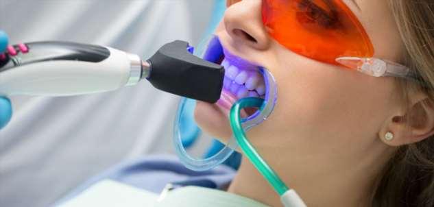 Почему стоматологи рекомендуют лазерное отбеливание