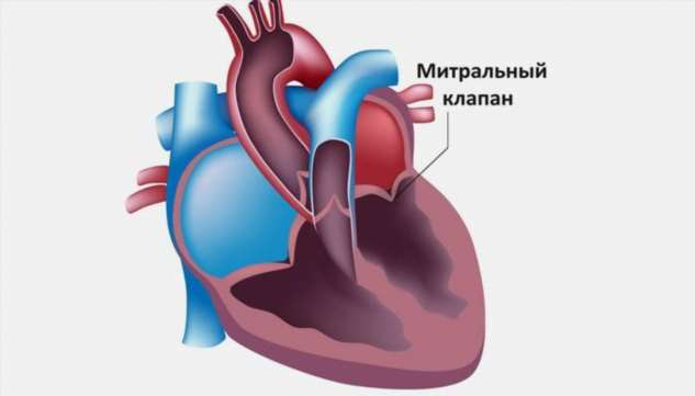 Пролапс митрального клапана 1 степени