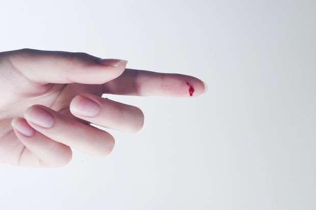 Что сделать, чтобы быстро остановить кровь при порезе