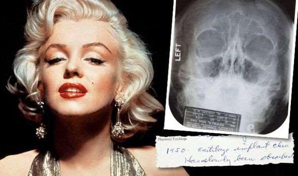 Какой была пластическая хирургия в Голливуде семьдесят лет назад