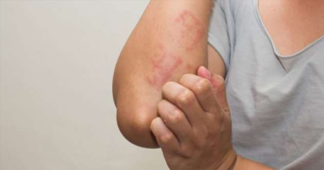 Контактный дерматит – виды, симптомы, методы лечения и лучшие средства