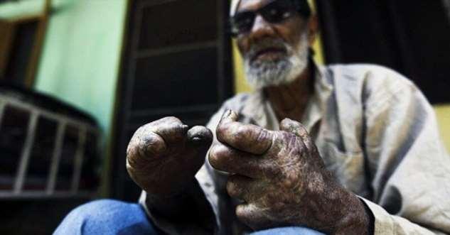 История проказы: почему человечество обуздало, но не победило «ленивую смерть»