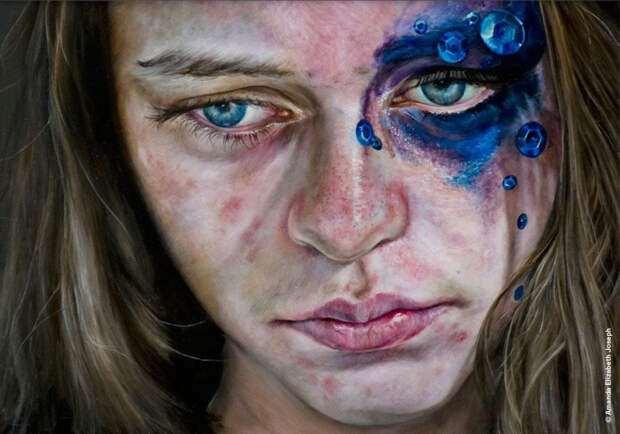 Шизофрения и повышенная тревожность: 6 психических расстройств жителей большого города