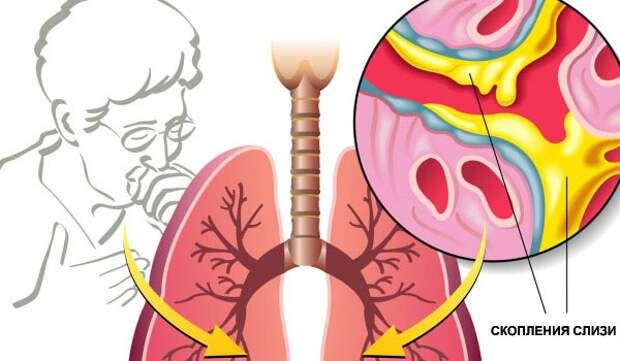 7 натуральных способов вывести слизь из легких и облегчить дыхание