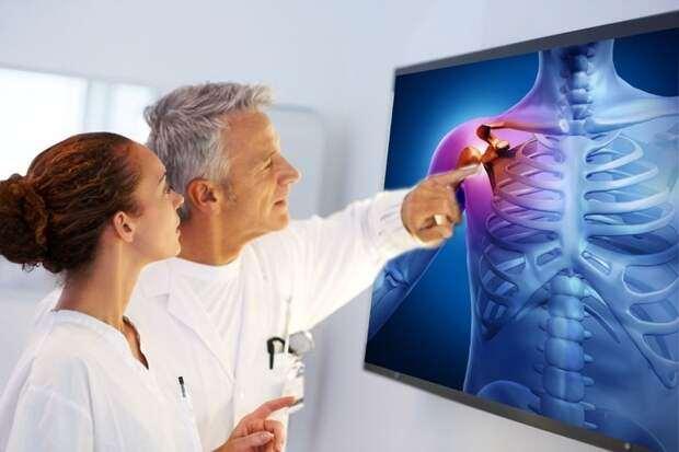 Остеопороз — тихая эпидемия XXI века