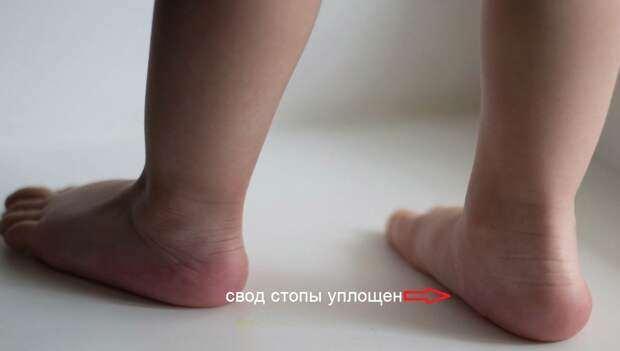 Припавшая пылью сенсация или Что давно пора знать про детскую обувь, плоскостопие и «искривление» ножек